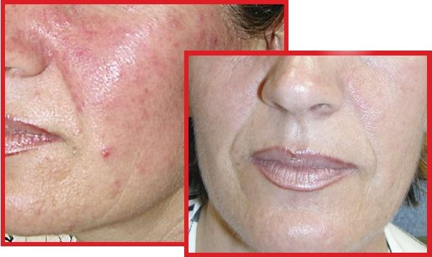 Rosacea terapia laser